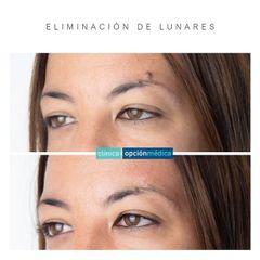 Lunares - Clínica Opción Médica