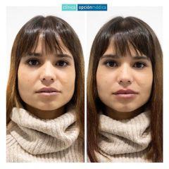 Aumento de labios - Clínica Opción Médica