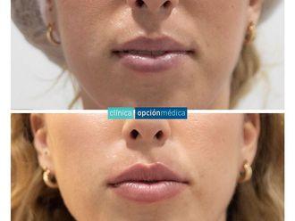 Aumento labios-787683