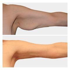 Liposucción - Clínica Opción Médica