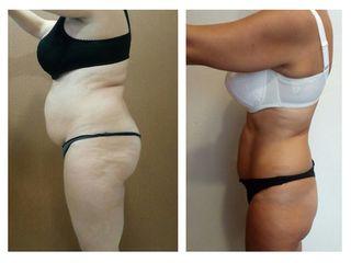 Antes y después cirugía bariátrica