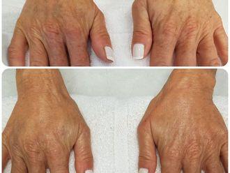 Tratamiento antimanchas-626166