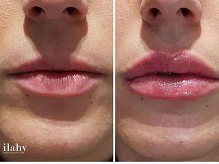 Aumento de labios con perfilados