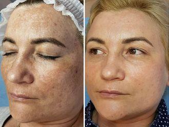 Corrección cicatrices-636608