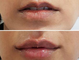 Aumento labios-636609