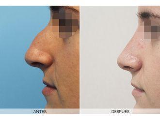 Cirugía estética-662442