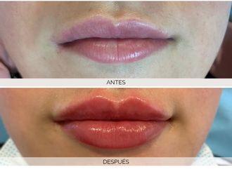 Aumento labios-701327