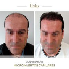 Tratamiento capilar - Dr. Luis Navarro Tenedor - Ilahy Instituto Dermoestético