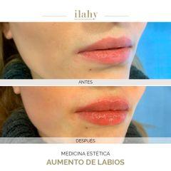 Aumento de labios - Dra. Artemenko - Ilahy Instituto Dermoestético