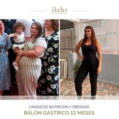 Balón gástrico 12 meses - Pérdida de 37 kilos - Ilahy Instituto Dermoestético