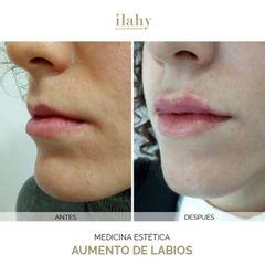 Aumento de labios - Ilahy Instituto Dermoestético