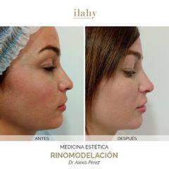 Rinomodelación - Ilahy Instituto Dermoestético