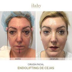 Blefaroplastia - Ilahy Instituto Dermoestético