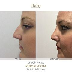 Rinoplastia - Ilahy Instituto Dermoestético