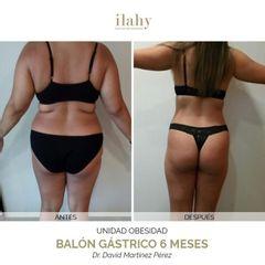 Balón gástrico - Ilahy Instituto Dermoestético