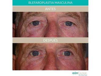 Blefaroplastia-701721