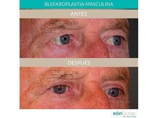 Blefaroplastia - Dra. Marta Payá