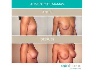 Aumento de pecho - Dra. Marta Payá