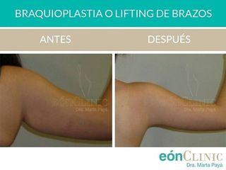 Lifting de brazos - Dra. Marta Payá