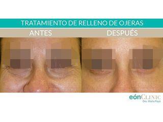 Eliminación de ojeras - Dra. Marta Payá