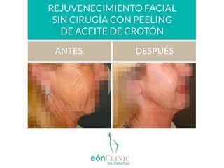 Rejuvenecimiento facial - Dra. Marta Payá
