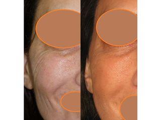 Eliminación de arrugas - Dra. Marta Payá