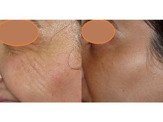 Eliminación arrugas-776021