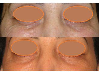 Eliminación arrugas-776022