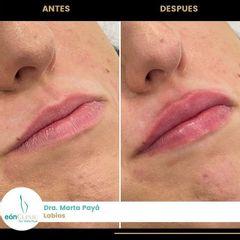 Aumento de labios - Dra. Marta Payá