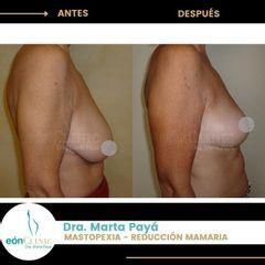 Mastopexia - Dra. Marta Payá