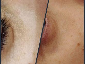Rellenos faciales - 607183