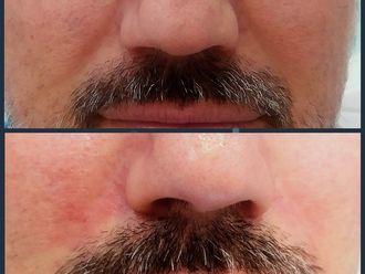 Rellenos faciales - 607184