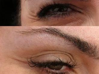 Rejuvenecimiento facial-607185