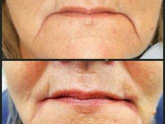 Rellenos faciales - 607186