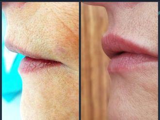 Aumento labios - 607188