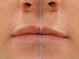 Aumento labios - 607191