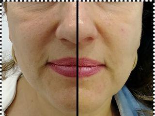 Antes y después Biorremodelacion facial