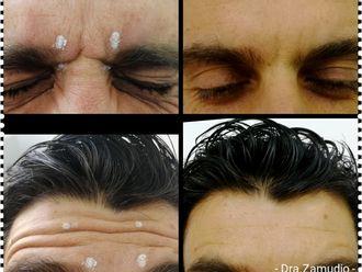 Medicina estética-614198