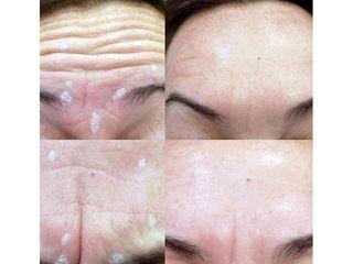 Antes y después Rejuvenecimiento facial