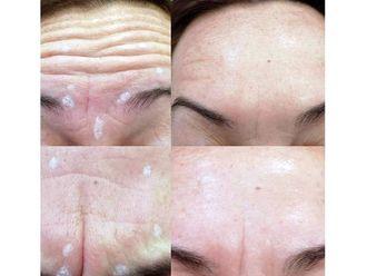 Rejuvenecimiento facial-639716