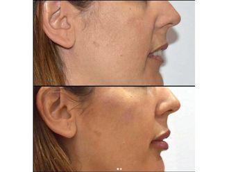 Rellenos faciales-639720