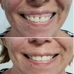 Antes y después Sonrisa gingival - Dra. Lucía Zamudio Sánchez