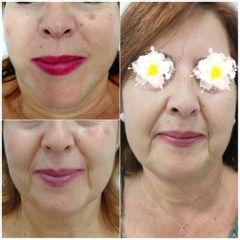 Antes y después Peeling - Dra. Lucía Zamudio Sánchez