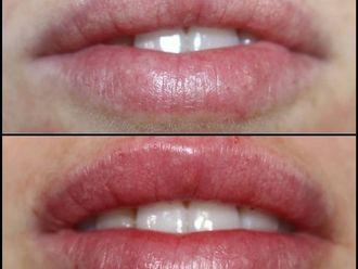 Aumento labios-737717