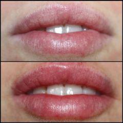 Antes y después Aumento de labios - Dra. Lucía Zamudio Sánchez