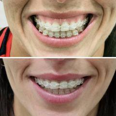 Antes y después sonrisa gingival- Dra. Lucía Zamudio Sánchez