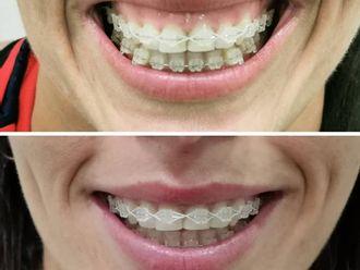 Odontología-737720