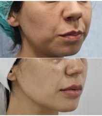 Antes y después Bichectomía - Dra. Lucía Zamudio Sánchez