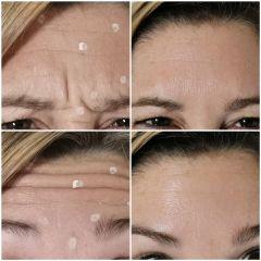 Antes y después Bótox - Dra. Lucía Zamudio Sánchez