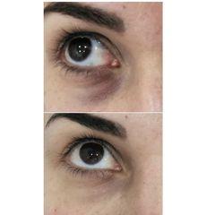 Antes y después Eliminación de ojeras - Dra. Lucía Zamudio Sánchez